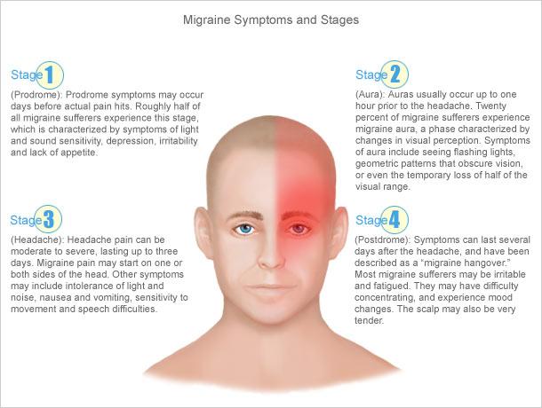 Simptom-simptom migrain, Peringkat-peringkat migrain, migrain, sakit kepala